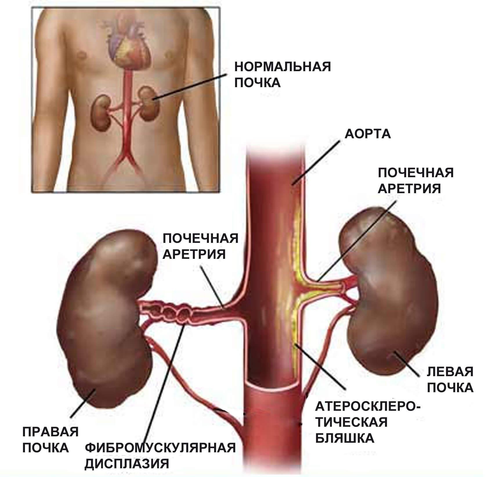 Причины симптомы и лечение почечного давления