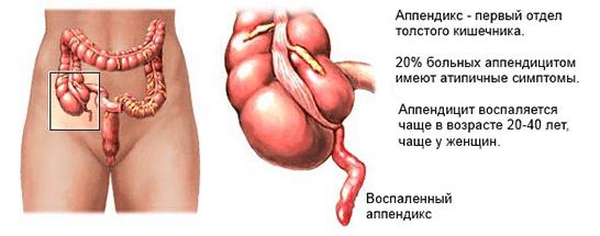 резкая боль справа внизу живота при мочеиспускании