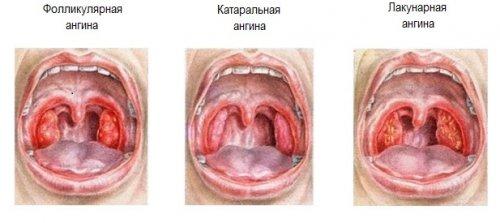 удаление миндалин запах изо рта