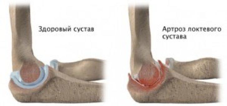 постравматический доа локтевого сустава