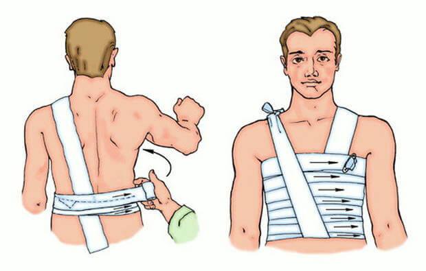 Ушиб колена при падении: симптомы, лечение 33