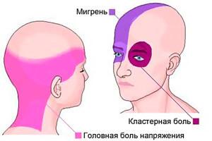 golovnaya-bol-napryazheniya-simptomy-i-lechenie
