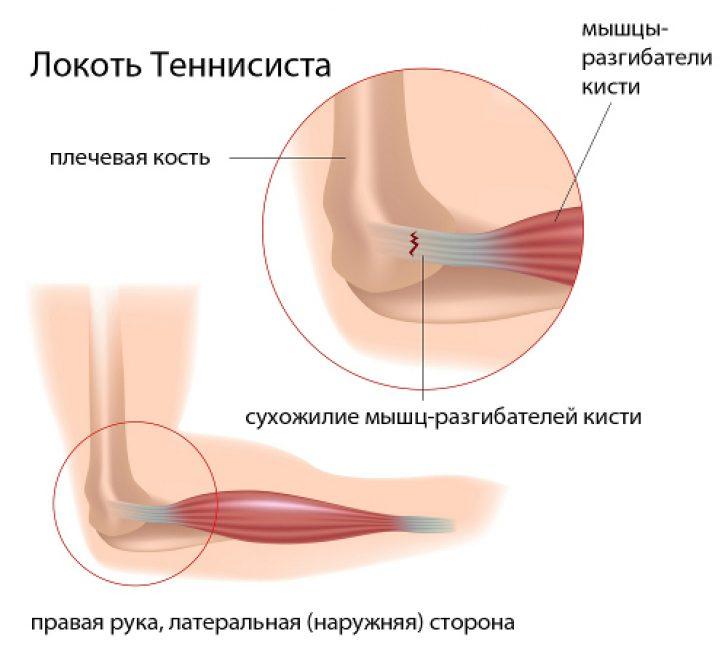Elbow method