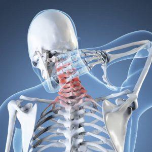 meditsina-osteohondroz-i-golovnye-boli