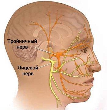 nevralgija-litsevogo-nerva