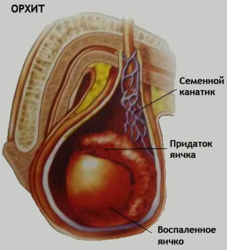 Упражнения от шейного остеохондроза бутримова