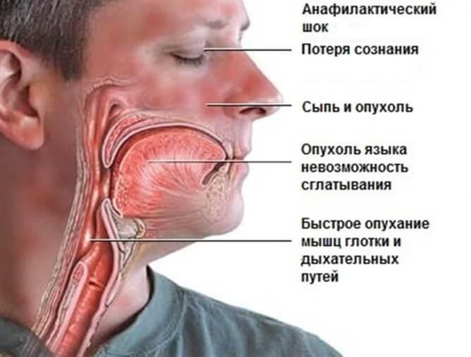 flemoksil