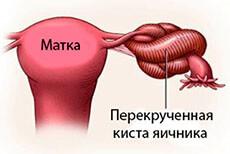 perekrut-nozhki-kisty