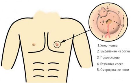 simptomi-raka-molochnoy-zhelezi-u-muzhchin