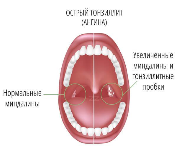 simptomy tonsilitta
