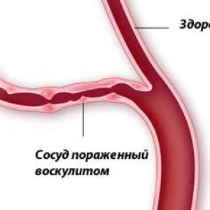 vaskulit