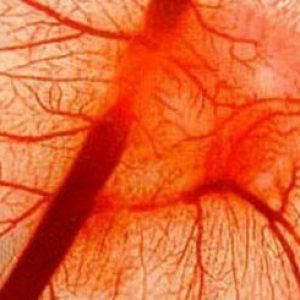 Васкулит: что это за болезнь, симптомы и лечение васкулита у ...