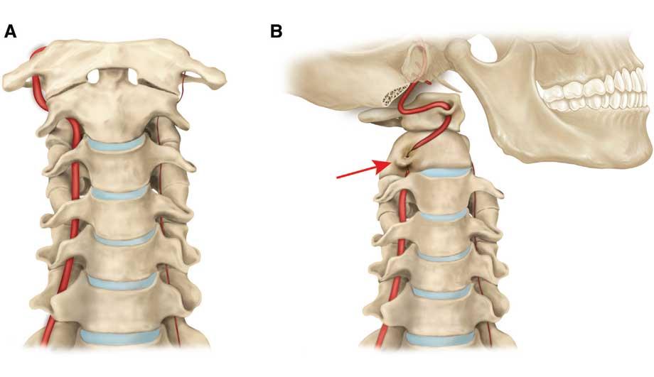 Что такое синдром позвоночной артерии, симптомы и лечение при ...