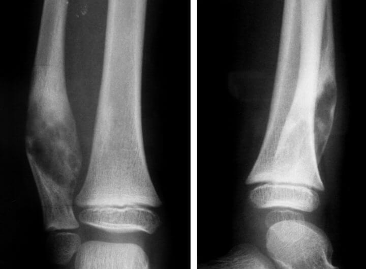 Ложный сустав после перелома: лечение, операция, причины ...
