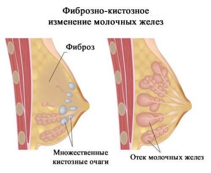 заболевание молочных желез фото