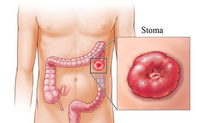 stoma-gemoroy