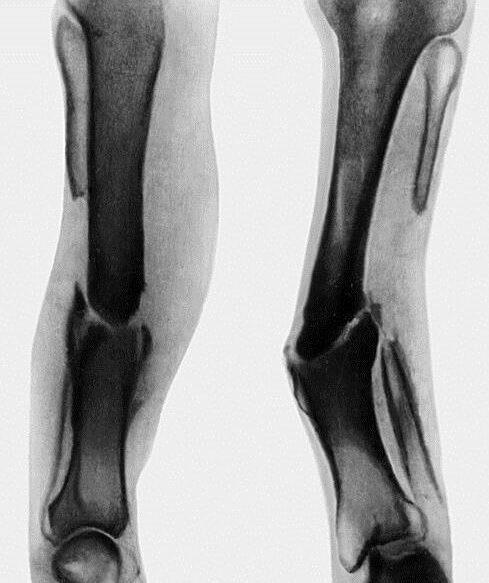 Показать фото ложных суставов капсулы сустава растяжение вывихи и воспаление