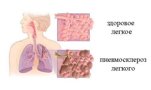 Problema-pnevmoskleroza (1)