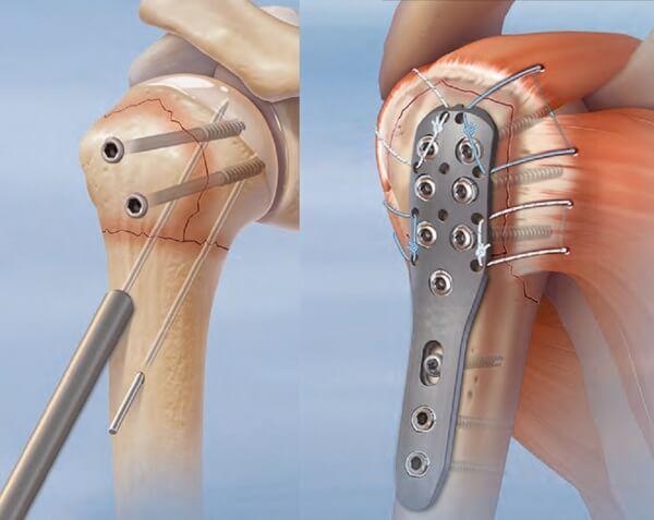 Методы лечения врожденного ложного сустава заболевания костей и суставов alezan