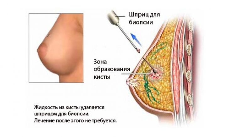 Увеличение груди при кистах