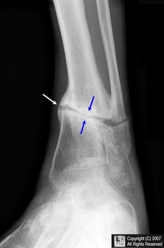 Ложный сустав ребра компресс желчи сустав