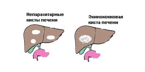 kista-pecheni