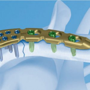 osteosintez-plastinoj-pri-perelomah-kljuchicy