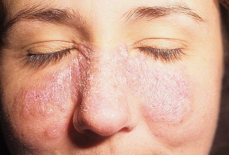 Вокруг носа краснота и шелушение как лечить