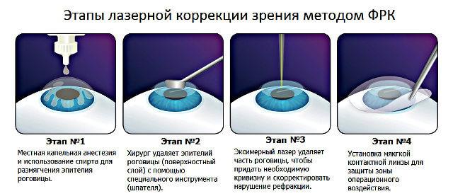 lazernaya-korreciya-zreniya (1)