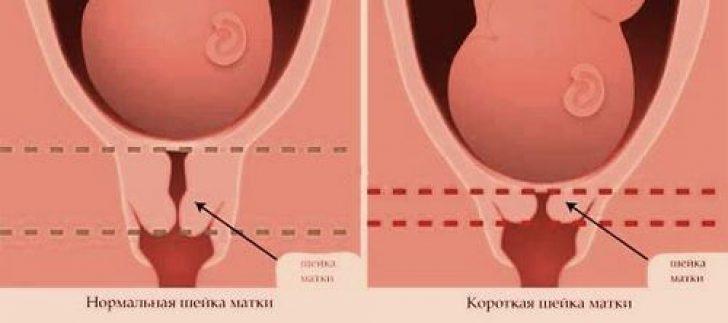 Фото шейки матки до беременности и на первых неделях беременности
