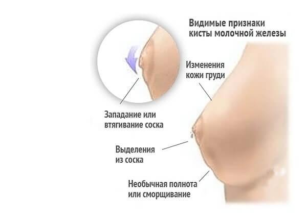 simptomy-kisty-grud