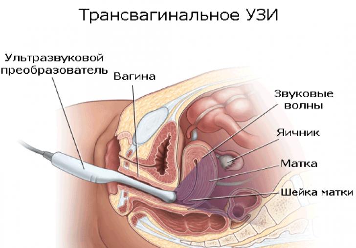 vaginalnoe-uzi-vo-vremya-mesyachnih-mesyachnih