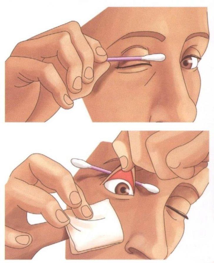 как у малыша достать ресничку с глаза