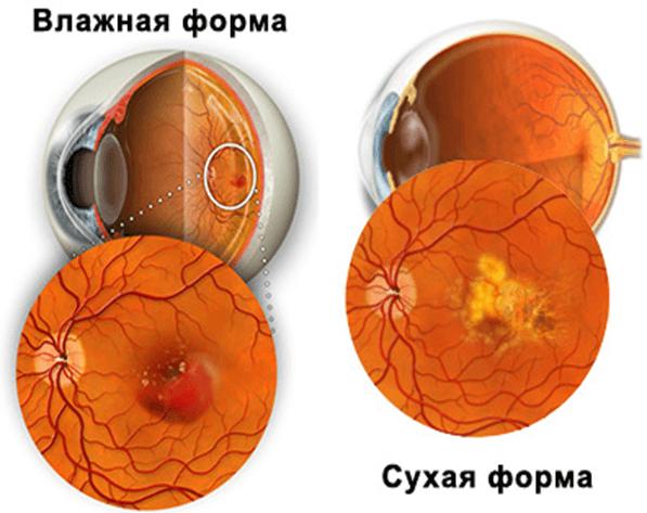 Макулярная дистрофия сетчатки глаза лечение