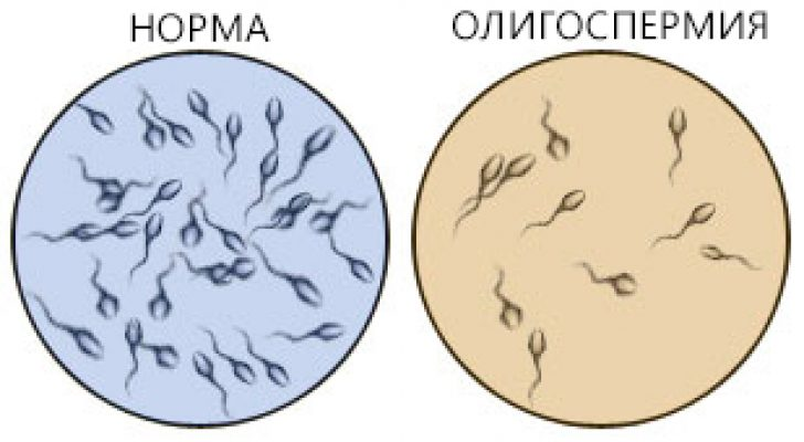 norma-morfologii-v-spermotozoydah