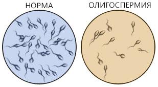 Олигоспермия