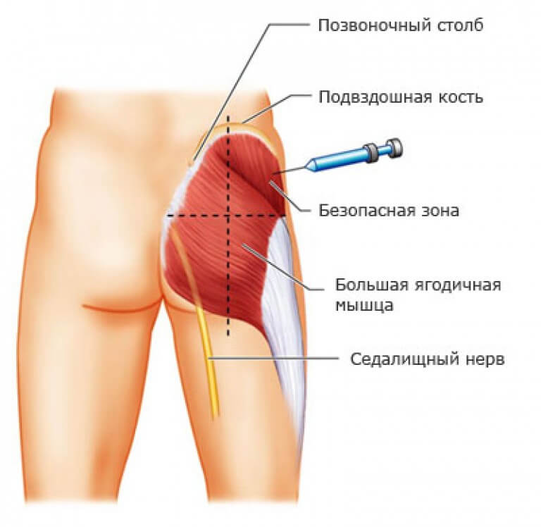 Инъекция анальгин димедрол