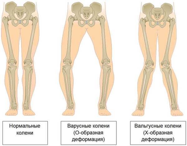 deformaciya