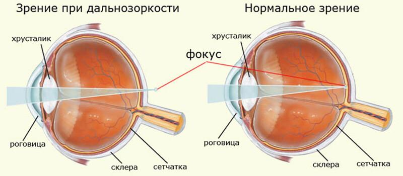Амблиопия и астигматизм лазерная коррекция зрения