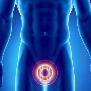 esli-udalit-prostatu