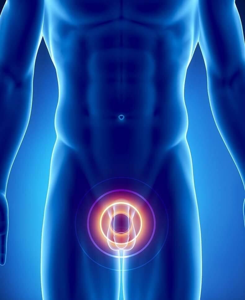 Операция тур аденомы предстательной железы