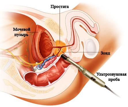препараты нормализации холестерина в крови