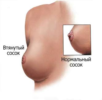 Массаж груди и сосок