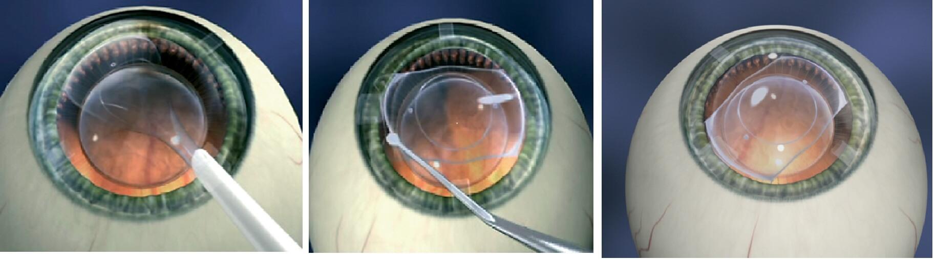 Бесплатно лазерная коррекция зрения