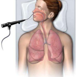 bronhoskopii