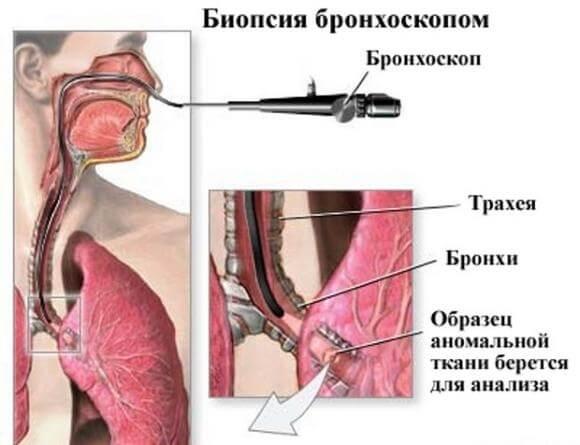 bronhoskopija-pokazanija
