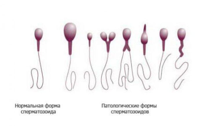 kak-opredelit-zhivie-li-spermatozoidi