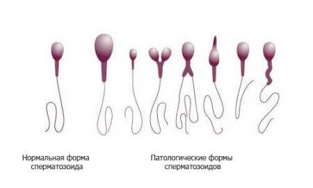 formy-spermie