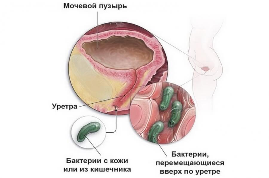 videleniya-iz-vlagalisha-pri-grippe