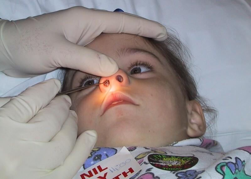 Почему не проходит заложенность носа у ребенка